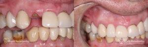 Dental Implants Patient 2 Teeth