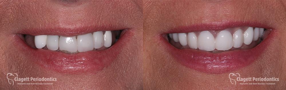 Dental Implants Patient 3 Teeth