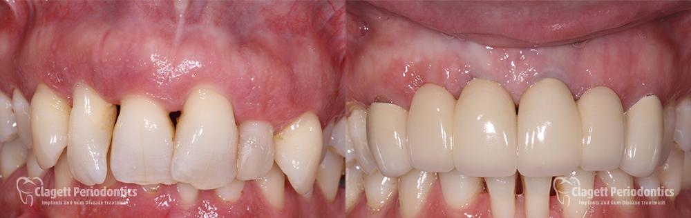 Dental Implants Patient 4 Teeth