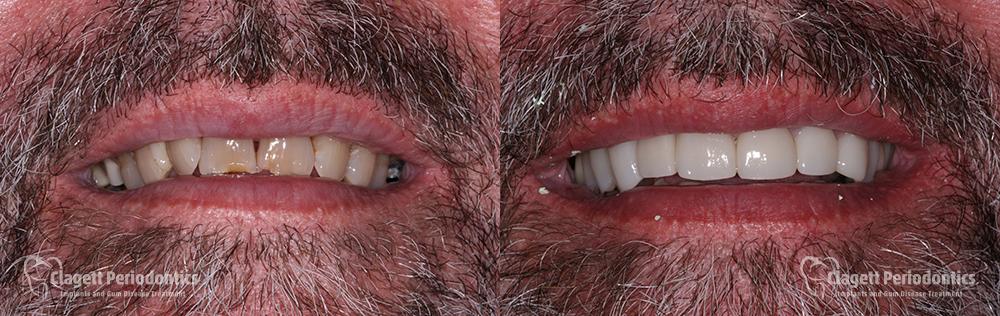 Dental Implants Patient 5 Smile