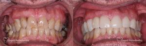 Dental Implants Patient 5 Teeth