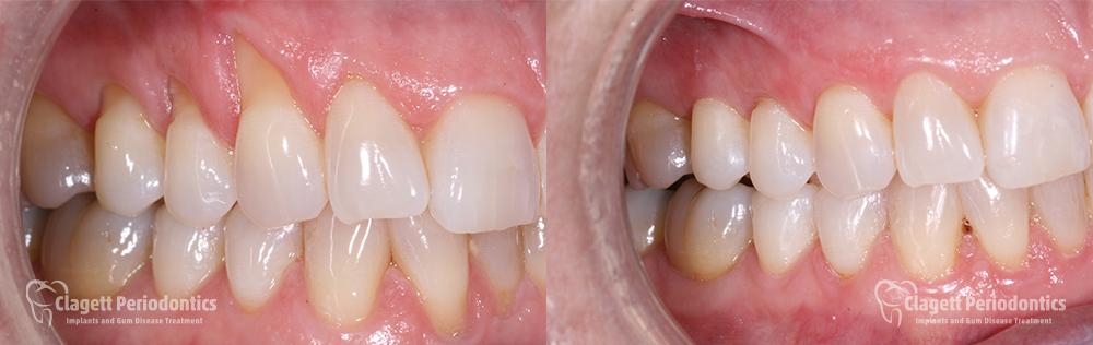 Gum Recession Patient 1 Teeth