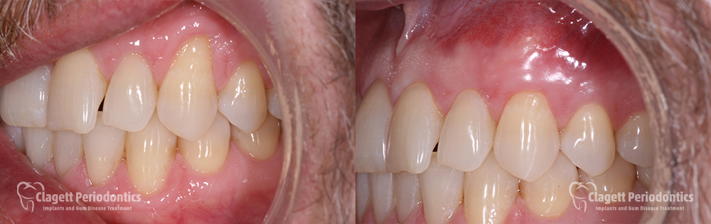 Gum Recession Patient 2 Before and After