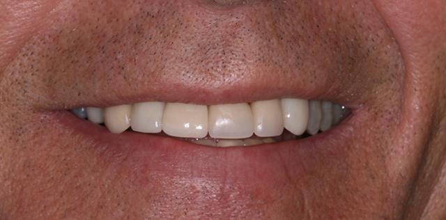 Implant After Slider