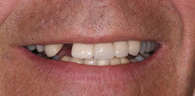 Implant Before Slider