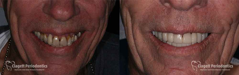 Smile Enhancement Patient 1 Smile