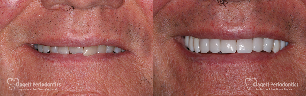 Smile Enhancement Patient 2 Smile